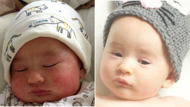 Baby Eczema Before & After