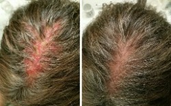 Scalp Rash & Hair Loss - Before & After