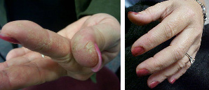 Cracked, Dry, Scabbing Hands & Fingers Before & After
