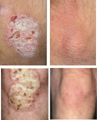 Elbow & Knee Psoriasis Before & After