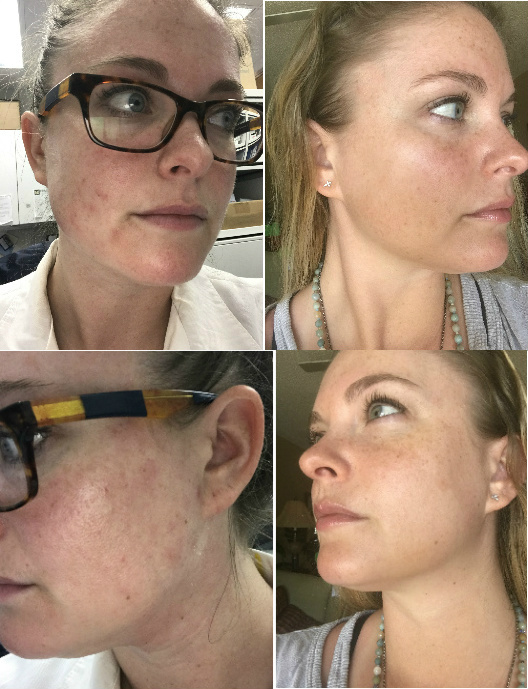 Facial Seborrheic Dermatitis Before & After