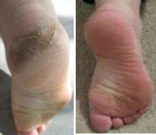 Cracked Diabetic Feet Before & After