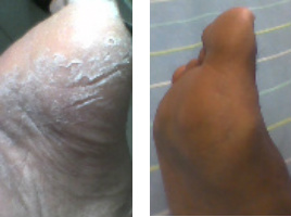 Dry Cracked Feet Before & After