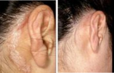 Scalp & Ear Psoriasis Before & After