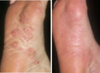 Itchy Rash On Feet Before & After