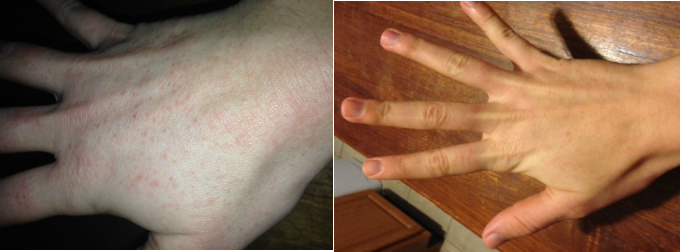 Hand Contact Dermatitis Before & After Pictures