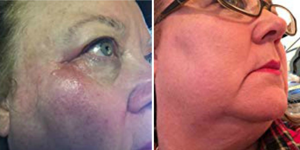 Inflamed Red Itchy Facial Skin Before After