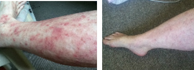 Leg Eczema & Rash Before & After