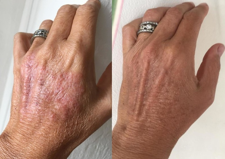 Hand Rash Before & After Pictures