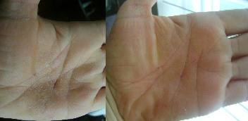 Dry Cracked Hands Before & After Pictures