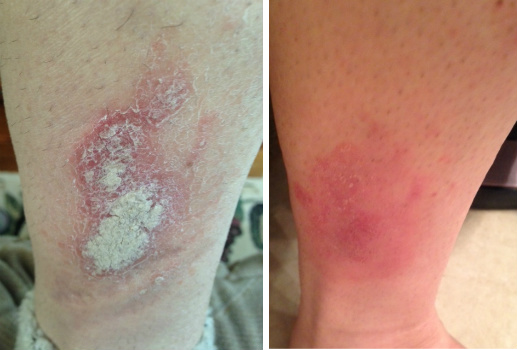 Leg & Ankle Psoriasis Before & After
